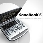 Chison Sonobook 6